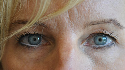 roseville_blepharoplasty_before