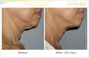 ultherapy_beforeandafter_neck_roseville_ca