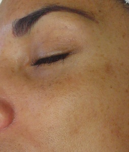 Hyperpigmentation_Before
