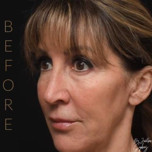 Facelift | Turn Back Time with a Facelift or Neck Lift